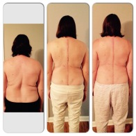 Before/ 3wks/ 1 month post-op